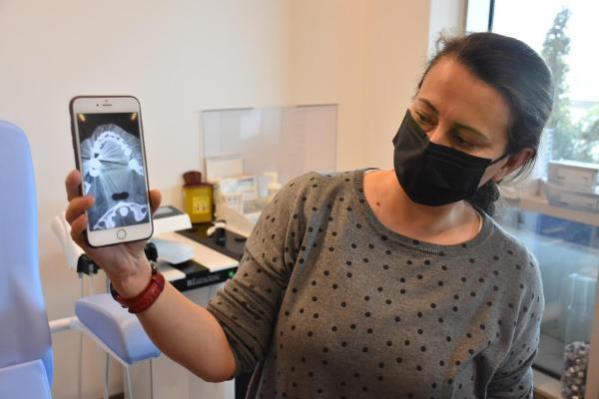 Boğaz Ağrısı Şikayetiyle Hastaneye Giden Kadın'ın Boğazına İğne Saplanmış