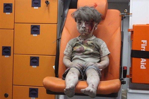 'Suriyeli Umran öldü' iddiaları asılsız çıktı