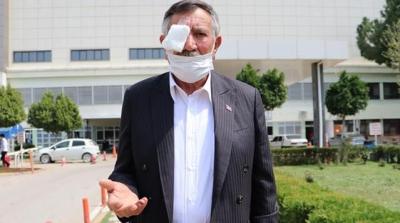 50 Kuruşluk Tuvalet Parası İçin Yaşlı Adamı Dövüp, Hastanelik Ettiler