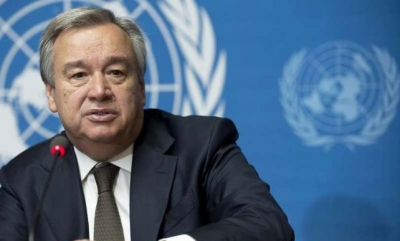 BM Genel Sekreteri: 'Federe devlete çok yakınız'