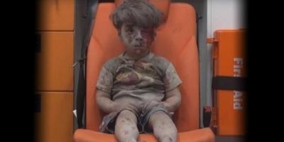 Savaşın acı yüzü :Ümran